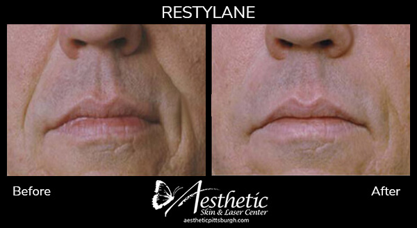 restylane6_before_after-1
