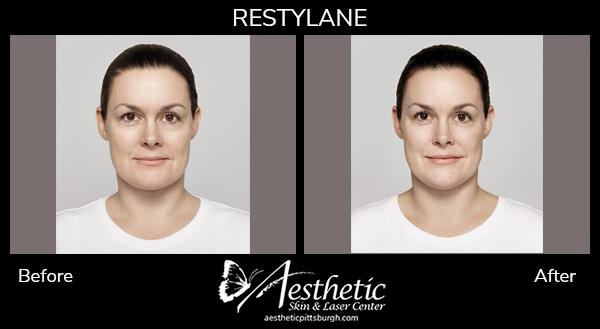 restylene-lyft