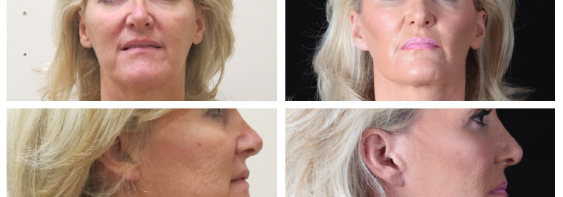 The Benefits of a Face Lift Surgery