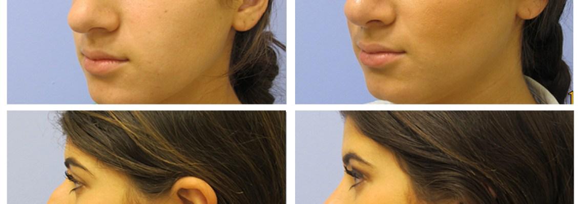Rhinoplasty: The Nose Reshaping Surgery