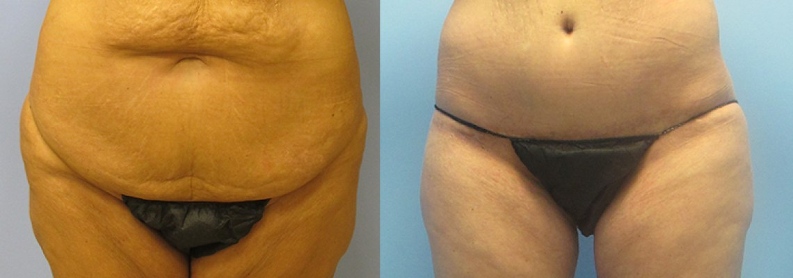 When to Consider a Tummy Tuck Surgery