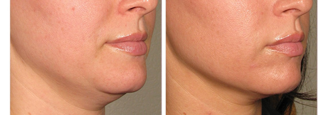 Ultherapy: A Non-invasive Neck, Brow and Under-Chin Lift