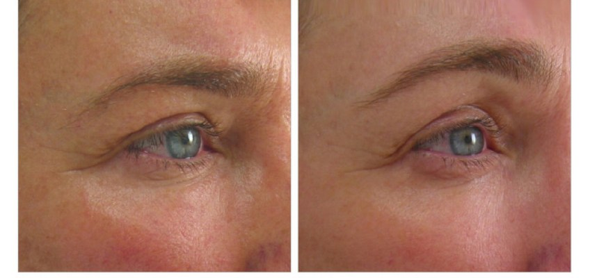 Ultherapy Brow Transformation