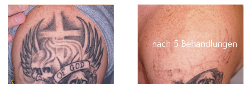 Tattooentfernung Tattoo Lasern Rostock Aesthetikzentrum