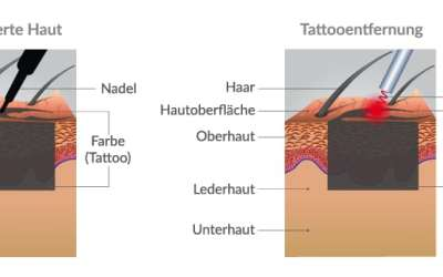 So funktioniert Laser Tattooentfernung