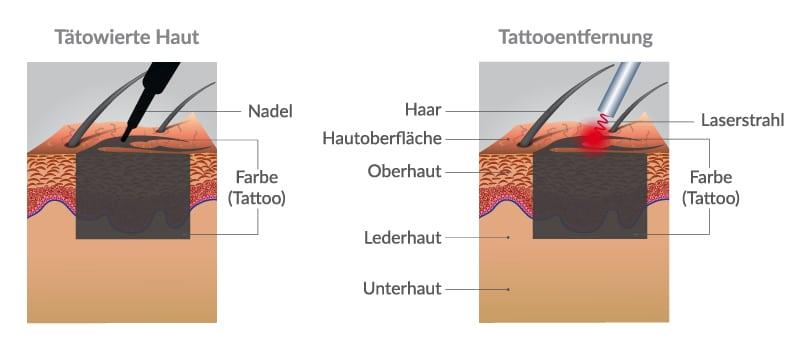 So funktioniert Laser Tattooentfernung