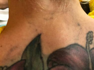 Tattooentfernung Laser Rostock | nach 1 Behandlung (lange Ruhephase)