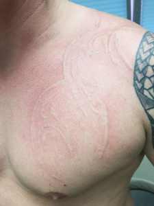 Tattooentfernung Rostock | nach der letzten Sitzung Tribal