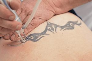 tattooentfernung rostock