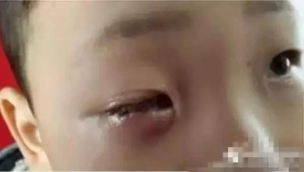 Bé 8 tuổi bị mù 1 mắt vĩnh viễn chỉ vì chiếc túi hút ẩm nhỏ xíu   - Ảnh 3.