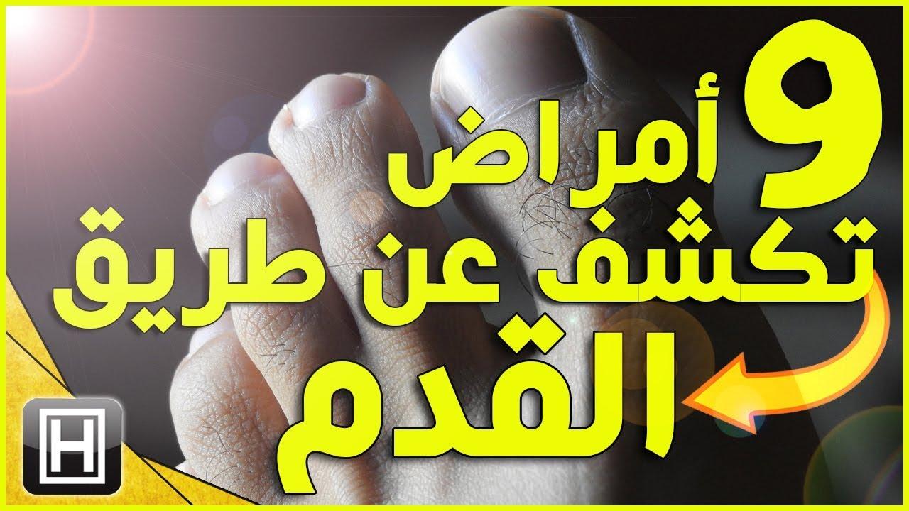 ماذا تخبرك القدم عن صحة الكبد تسعة أعراض