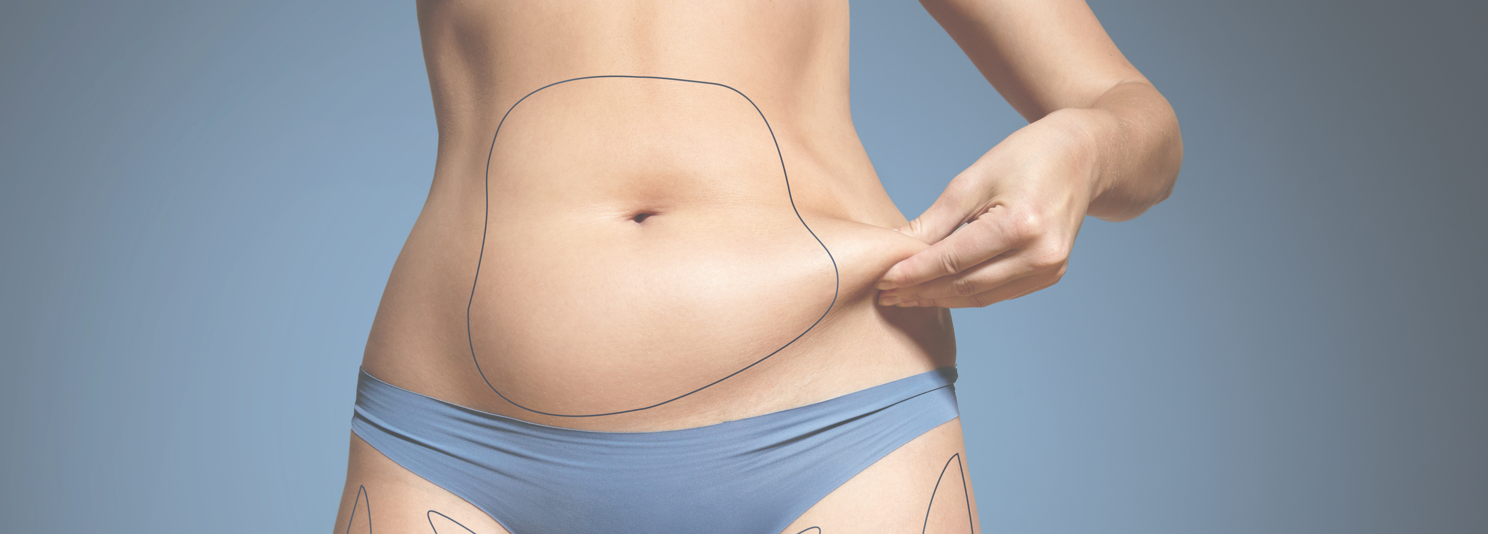 Affiliated Dermtology - CoolSculpting