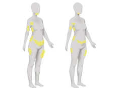 Where areas on the body does CoolSculpting treat.png