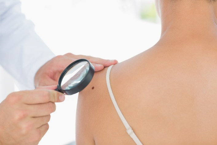 Skin cancer screenings in Phoenix, Arizona.jpg