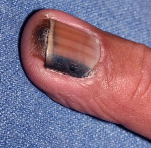 Melanoma affecting the fingernail