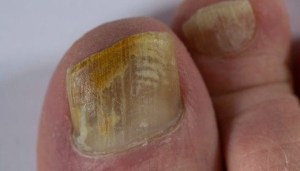 Toenail affected by fungus