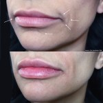 juvederm ultra before after