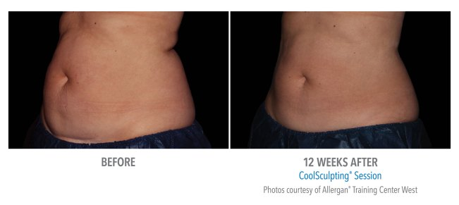 CoolSculpting before after abdomen.jpg