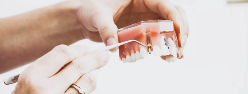 dentist holding fake teeth with dental implant