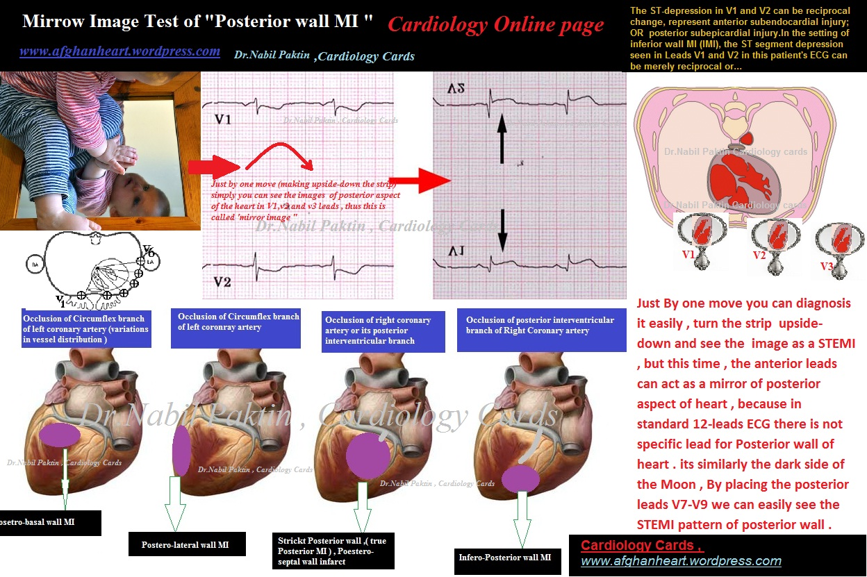 True Posterior Wall Mi Role Of Mirror Image Vectorcardiography And Echocardiography