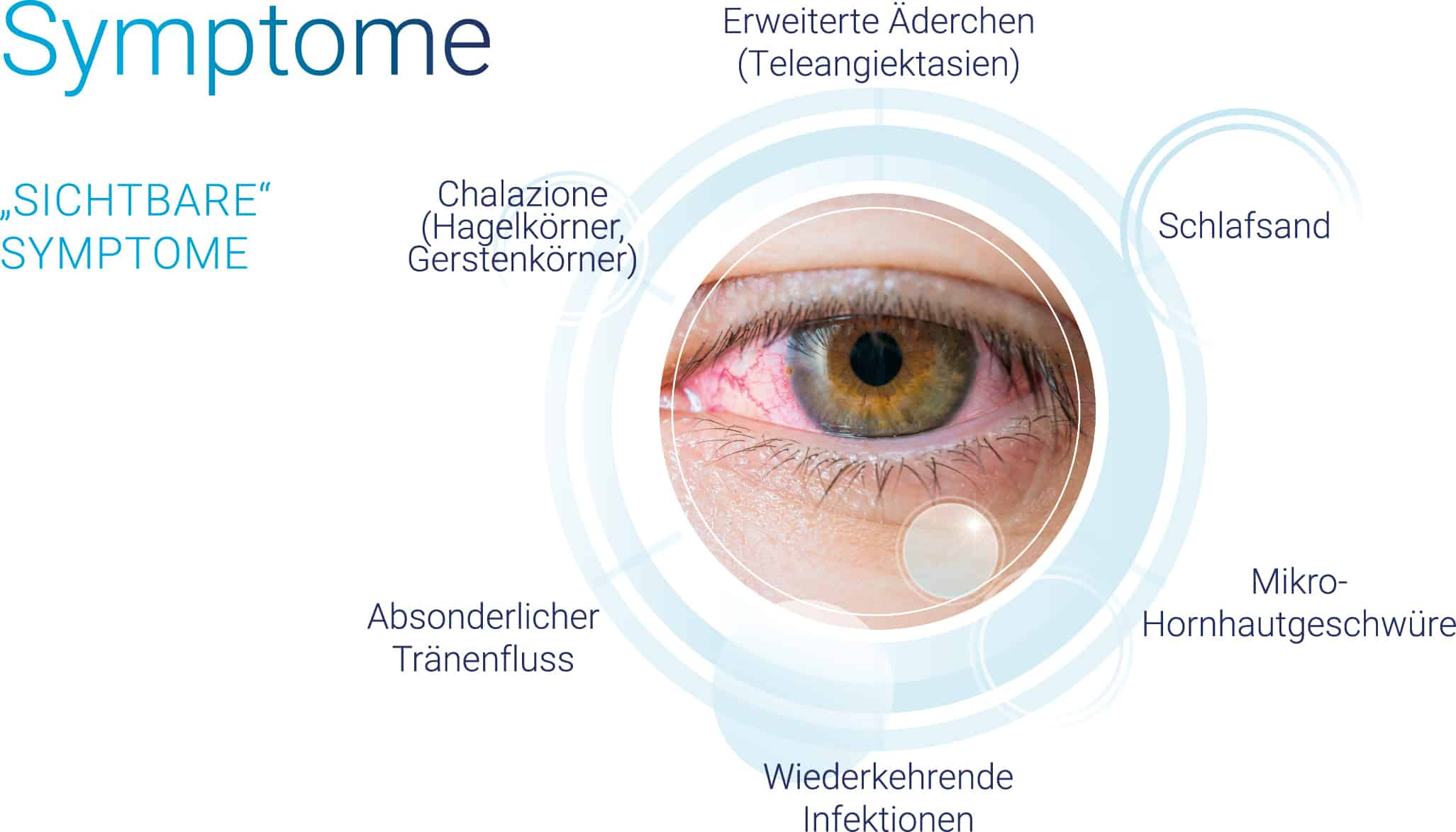 trockene Augen - Symptome: erweiterte Äderchen | Schlafsand | Hornhautgeschwüre | Infektionen | Tränenfluss | Gerstenkörner