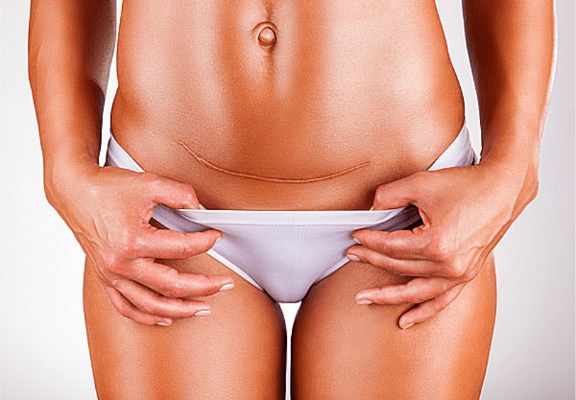 ❁ Descubra agora se Cicatricure funciona para cicatrizes antigas?