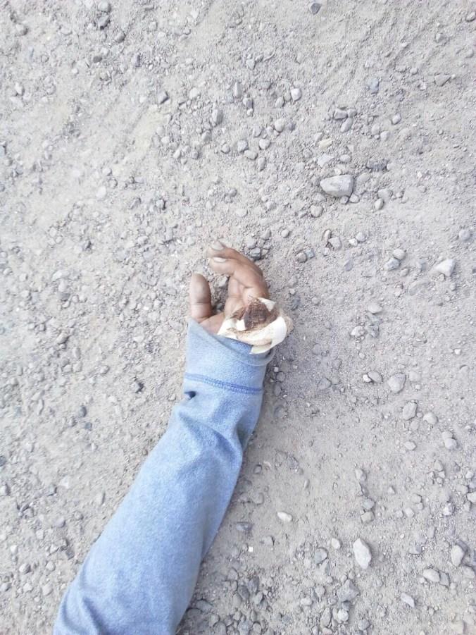 Encuentran cuerpo de un hombre sin vida en Edomex; le faltaba un dedo