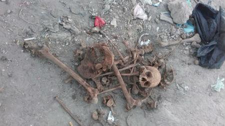 Los huesos fueron trasladados al Ministerio Público.