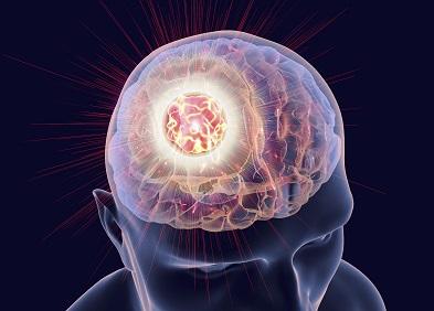 avec-mindmanager,-le-cerveau-reconcilie-les-deux-lobes-emotif-et-rationnel