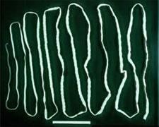 Les médecins ont découvert un tænia de 3 mètres de longueur chez une fillette de 8 ans au Kef. A noter que c'est la première