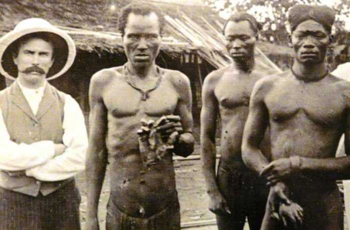 King Leopold II hack hands