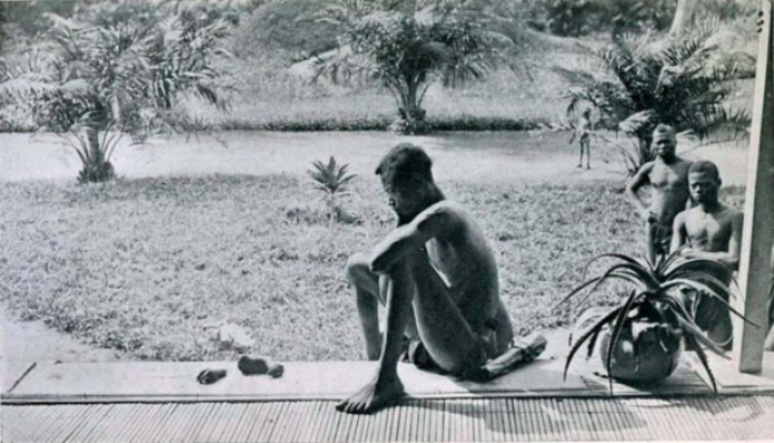 Mr. Nsala looking at his daughter's severed hand and foot