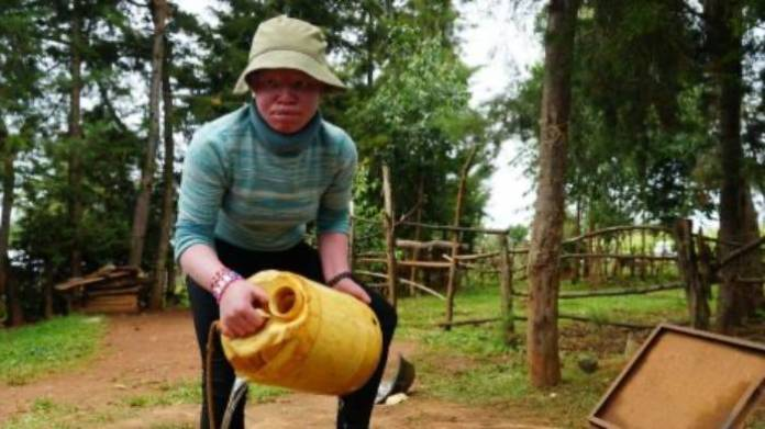 15-year-old Kenyan Albino student tells BBC how she was denied entry to 5 schools