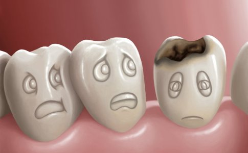 5-attitudes-avoid-cavities