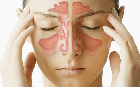 3-home-remedies-for-sinusitis