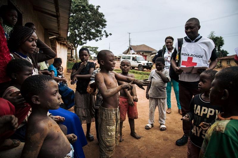 RDC conco épidemie ebola gestion équateur