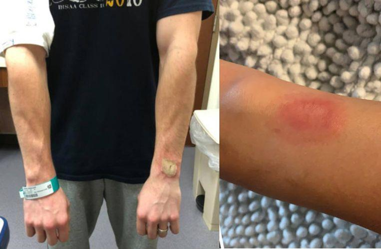 Big burns due to Fitbit: is wearing a sports watch dangerous?