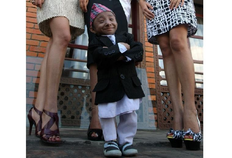 The world's shortest mobile man (27) died