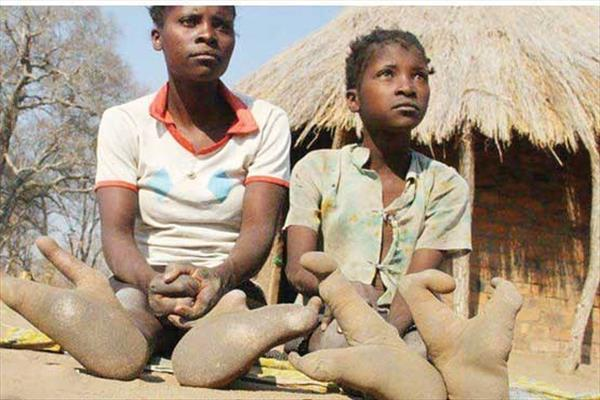 Vadoma: The Zimbabwe tribe that has only two toes on each foot
