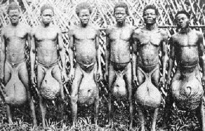 Bubal tribe: a tribe of bad dancers with giant testicles