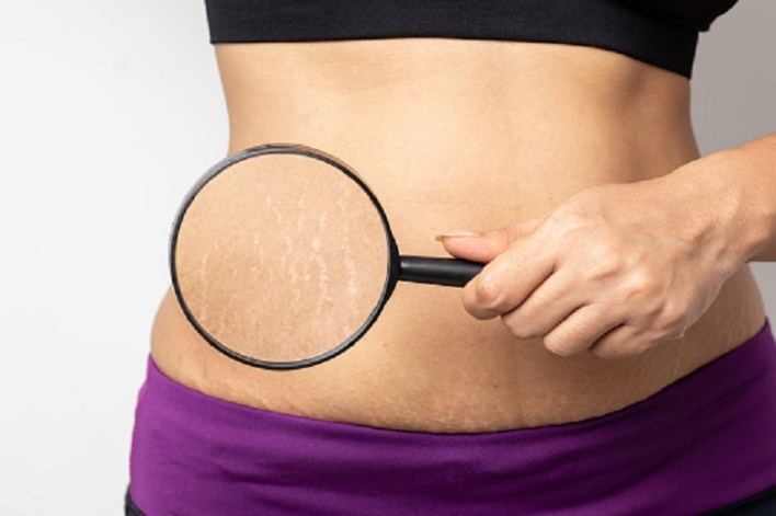 What causes stretch marks? Myths and truths
