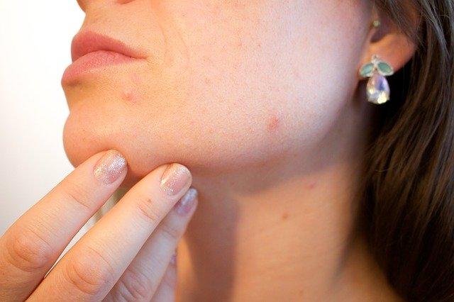 How to get rid of annoying pimples on the back