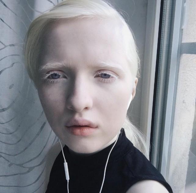 Albinos: Kiker Chan