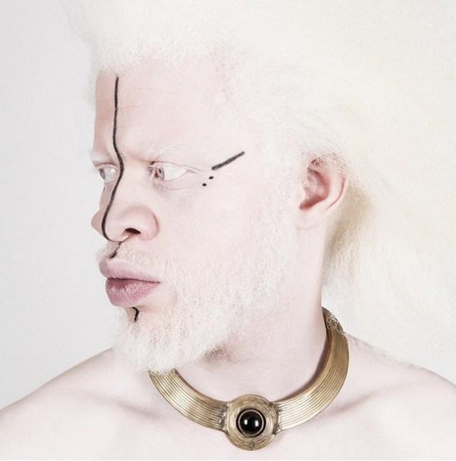Albinos : Jewell Jeffrey