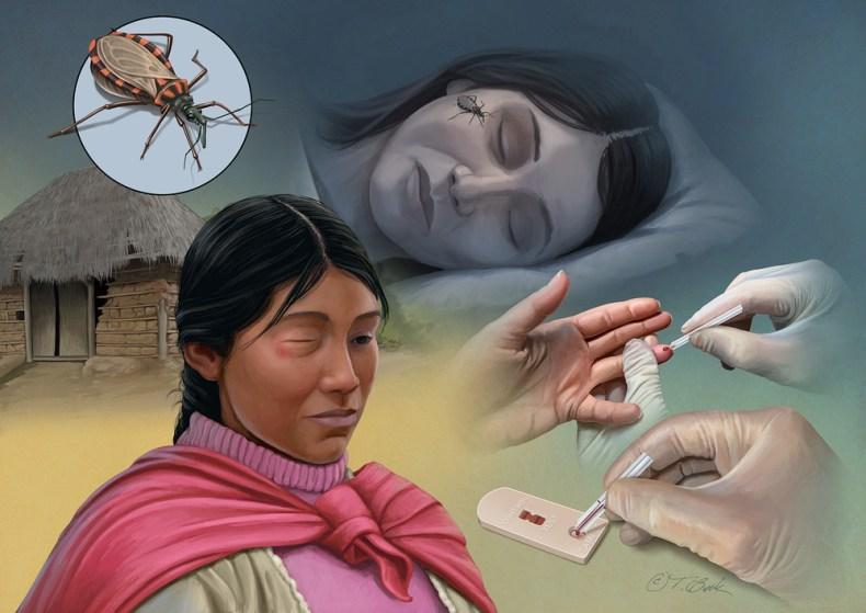Una enfermedad silenciosa y silenciada: el mal de Chagas