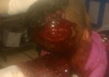 """عااجل بأكادير:""""بيتشو"""" يواصل اعتداءاته ويشرمل مؤخرة مواطن بأكادير"""