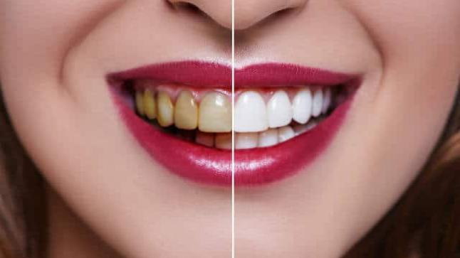 كيف تحصل على أسنان بيضاء بطرق طبيعية ؟