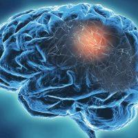 Szczepionka mRNA przeciw COVID-19 a neurodegeneracyjne choroby prionowe.