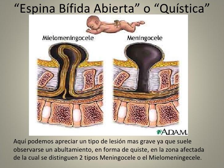 espina-bifida-11-728