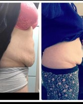 Fat Freezing results on Tummy area